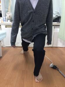 関節矯正後(写真3)